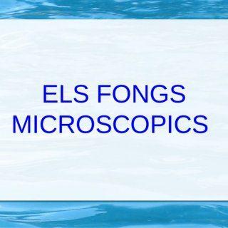 ELS FONGS MICROSCOPICS   Bon dia som un grup de la classe  de 6è i ens anomenam:  Efren, Alba ,  I Ayoub   FONGS MICROSCOPICS ● ● ● No podem veure tots. http://slidehot.com/resources/fongs-microscopics.35958/