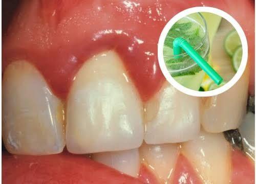 Vous souffrez régulièrement de gingivite ? Les gencives qui saignent sont une réalité de plus en plus commune au sein de la population mondiale.