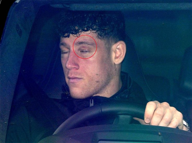 cool Ross Barkley pictured with nasty black eye after being punched during 'unprovoked attack' at Liverpool nightclub Check more at https://epeak.info/2017/04/13/ross-barkley-pictured-with-nasty-black-eye-after-being-punched-during-unprovoked-attack-at-liverpool-nightclub/