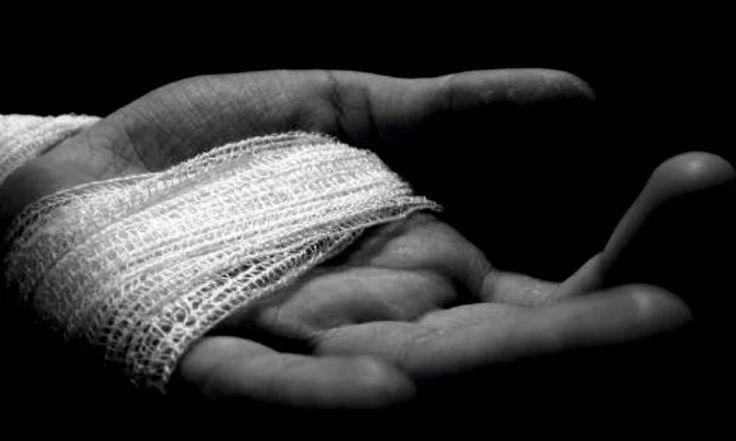 Il dolore dell'anziano è il prodotto di più patologie croniche potenzialmente debilitanti, come quelle osteoarticolari e vascolari, e fattori psicologici e sociali che possono modulare la percezione e la risposta al dolore;Continua a leggere...