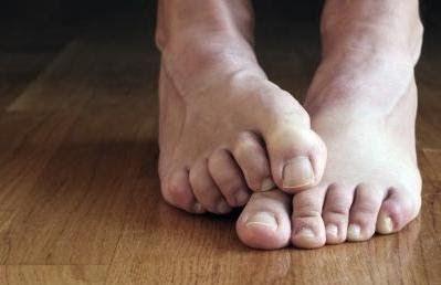 365 coisas que posso fazer...: 201 - Procurar soluções caseiras/naturais para tratar o pé-de-atleta
