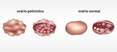 SOGESP - Associação de Obstetrícia e Ginecologia do Estado de São Paulo Ciclos irregulares, menor freqüência de ovulação e dificuldade para engravidar podem ser características comuns da síndrome dos ovários policísticos.