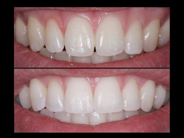 #Toothbonding or #dentalbonding uses a special tooth-coloured resin which is applied to the tooth then hardened using a special light. This bonds the resin to the tooth either to restore it or to improve the appearance of the tooth.
