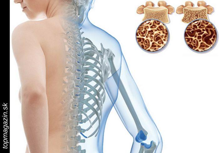 Soľ a olej: Liečivá zmes… Po tomto vzácnom prírodnom lieku neucítite bolesť aj niekoľko rokov!