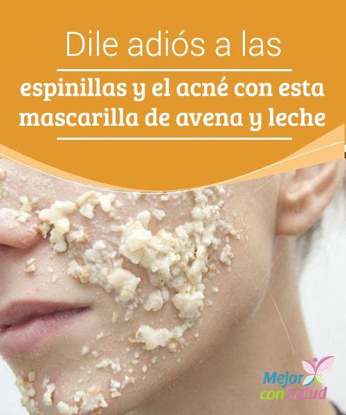 Dile adiós a las espinillas y el acné con esta mascarilla de avena y leche Tanto la avena como la leche tienen propiedades exfoliantes y astringentes que nos ayudan a limpiar los poros y eliminar impurezas para evitar la aparición de granitos