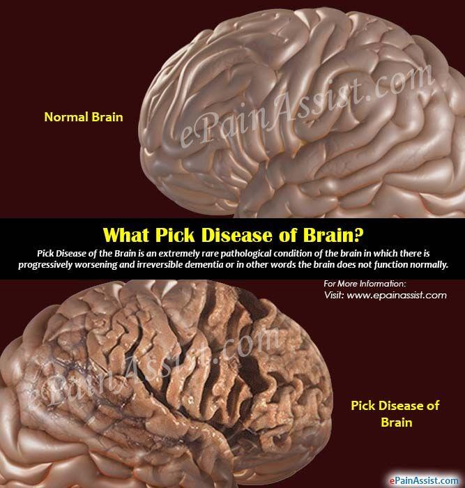 What is Pick Disease of Brain?