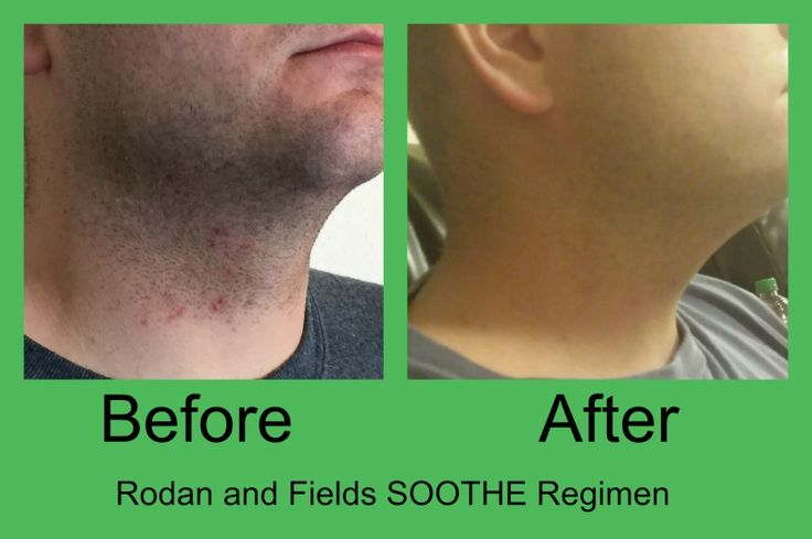 Here are Joe Simmons before and after photos after using Rodan + Fields Soothe Regimen.  Looks like he has found the solution to razor rash.