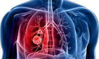 Les solutions pour traiter les bronchites graves - Y a-t-il un remède pour traiter ma bronchite chronique ? Comment puis-je guérir de mon infection pulmonaire ? Ce sont des questions pour lesquelles il est important d'avoir des solutions efficaces qui soignent et guérissent naturellement, les plantes que nous offre Mère nature sont là pour vous aider, il suffit simplement d'y penser.  http://www.complements-alimentaires.co/wp-content/uploads/2014/11/les_solut