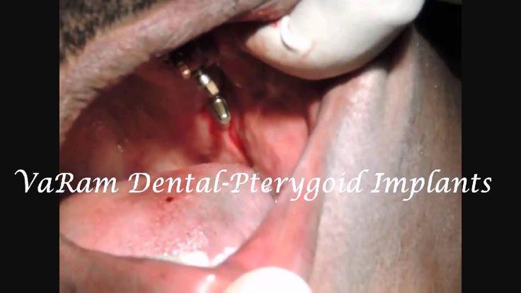 Part 4-WatchTubero Pterygoid Implants In Low Level Maxillary Sinus case ...