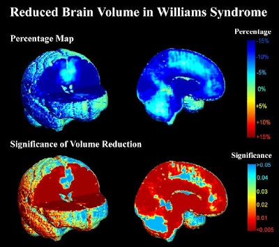Reduced brain volume in Williams syndrome