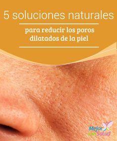 5 soluciones naturales para reducir los poros dilatados de la piel  La piel está cubierta de unos pequeños poros que cumplen la función de dejar transpirar la piel para refrescar el organismo y regular la temperatura.