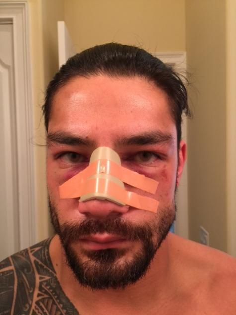 WWE reports Roman Reigns had surgery to fix a deviated septum, no timetable for a return. http://www.cagesideseats.com/wwe/2016/2/24/11111242/roman-reigns-surgery-deviated-septum-wwe-return