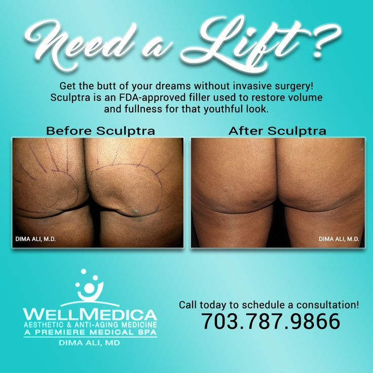 Get the butt of your dreams! Ask Dr. Dima how! – #Butt #Dima #Dr #dreams