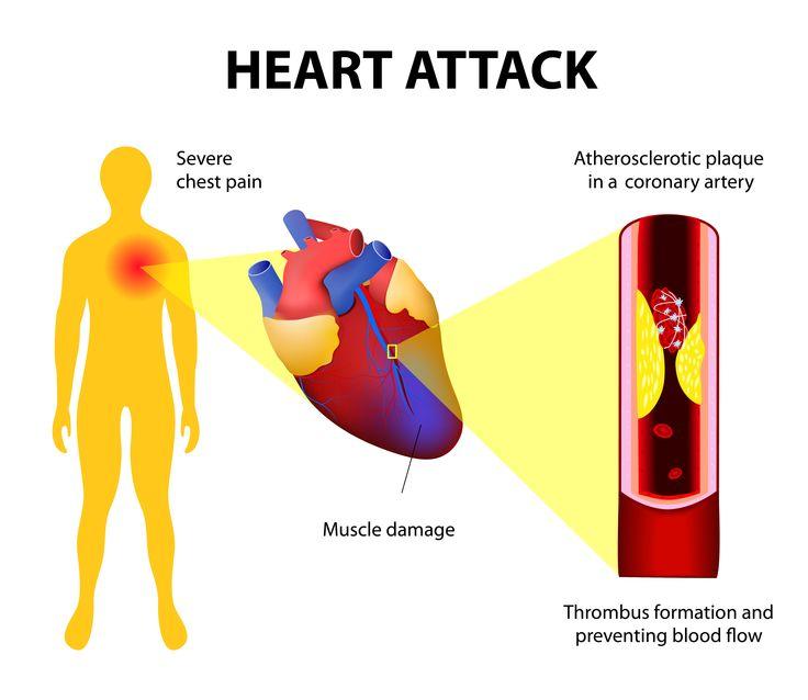 Attacco cardiaco #salute #cuore