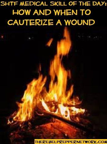 SHTF Medical Skill of the Day: How (and When) to Cauterize a Wound