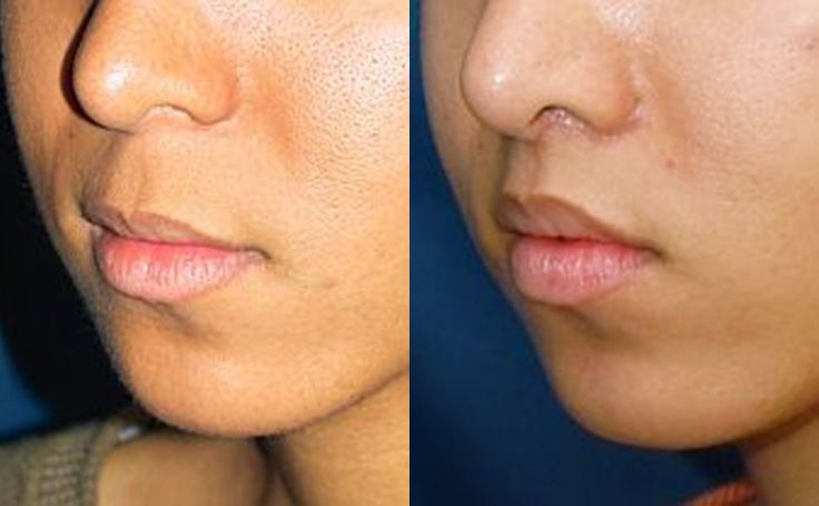 -Upper lip lift