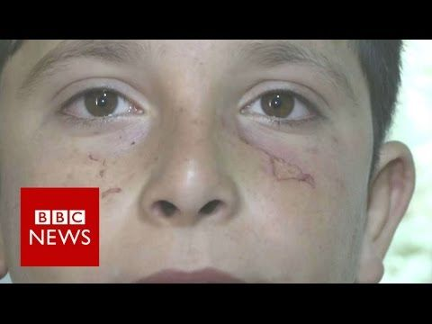 Syria refugee children 'bitten by rats' in camps - BBC News