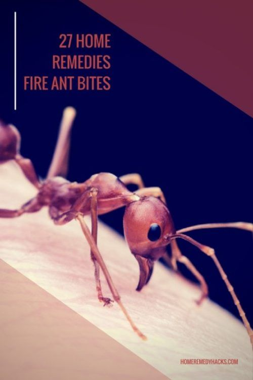 Home Remedy Hacks • 27 Home Remedies For Fire Ant Bites