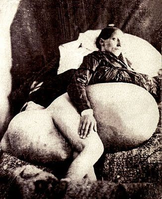 """YIKES!  In 1809, 46 year old Jane Todd Crawford rode 60 miles on horseback to see Dr. Ephraim McDowell who removed a 22 lb ovarian tumor through a 9"""" incision in 25 minutes (before anesthesia and antiseptic). Within a few weeks she got back on the horse, rode home, and lived another 22 years. - Fascinating!"""