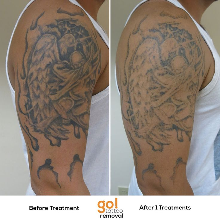 tattoo removal post treatment instructions