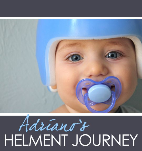 Best Plagiocephaly Awareness Images On Pinterest Helmets - Baby helmet decalsa family blog that takes you through the experience of a baby with