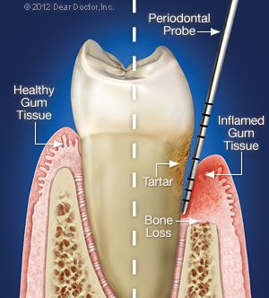 If you want to keep your natural teeth for life then you have to maintain good oral hygiene and have regular professional cleanings and oral examinations. It involves caring for the teeth themselves, but also the structures that surround them the gums and tooth-supporting bone. Periodontal therapy can take various forms, but the goal is always to restore diseased tissues to health. It includes both surgical and non-surgical techniques to restore health to the tissues.