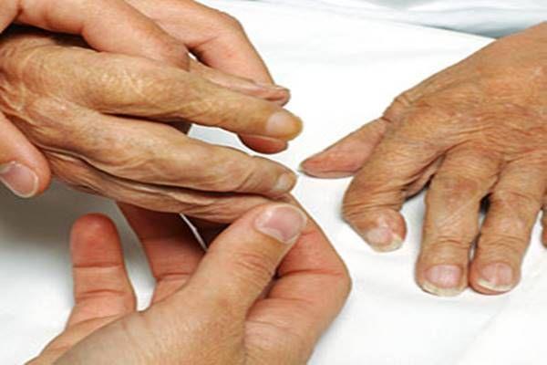Így gyógyítottam meg a reumámat, amit az orvosok sem tudtak megszüntetni! - Tudasfaja.com