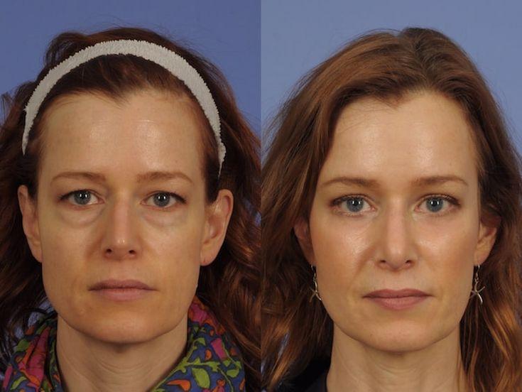 Amarillo Eye Lifts (Eyelid Surgery and Non-Surgical Options) #blepharoplasty #eyelidsurgery