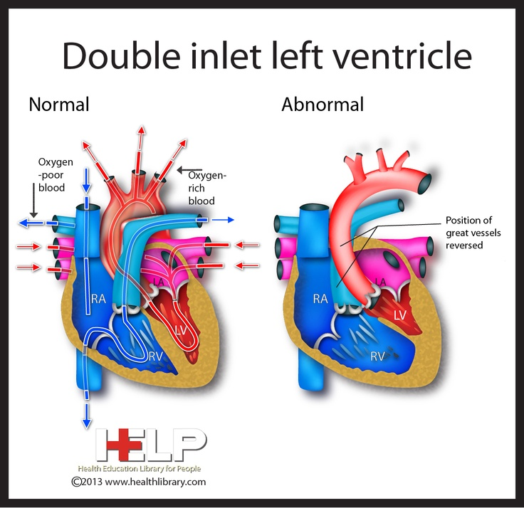 left ventricle heart failure What is ejection fraction ejection fraction (ef) refers to how well your left  ventricle (or right ventricle) pumps blood with each heart beat most times, ef  refers to.
