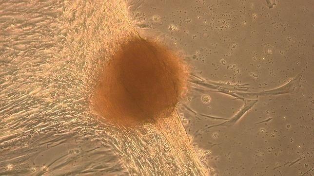 Crean «minihígados» en el laboratorio a partir de células madre de la placenta