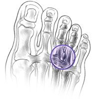 Morton's Neuroma's can be quite painful in the ball of the foot, but there are ways that can possibly make it feel better without surgery, like orthotics, metatarsal pads and Cluffy Wedges.  Check out this article for more information.