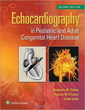 8 best stuff to buy images on pinterest med school medical and echocardiography in pediatric and adult congenital heart disease edition epub free medical books fandeluxe Image collections