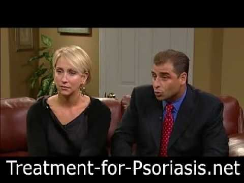 Treatment For Psoriasis - How My Mom Beat Psoriasis For Good - YouTube