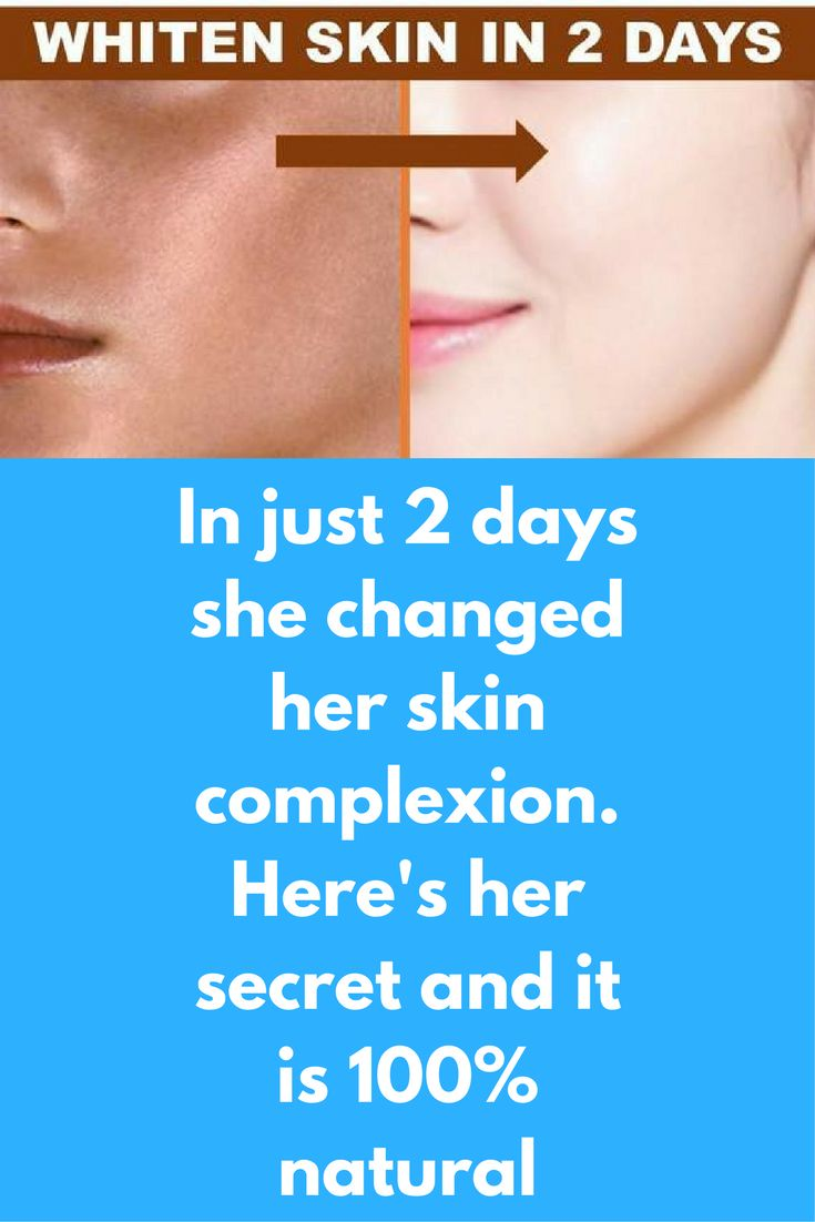 In just 2 days she changed her skin complexion. Her's her secret and it is 100% natural This is a very special remedy. This is a step process and in each one of them we are going to use ingredient that can make your skin complexion fair. You can see visib http://wartremovalpro.com/different-kinds-warts-treatment/
