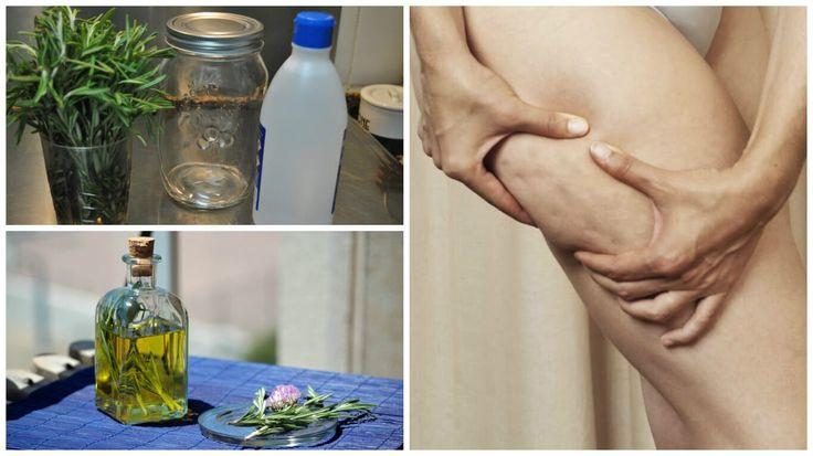 Αν και μπορείτε να βρείτε στην αγορά έτοιμη θεραπεία με οινόπνευμα και δεντρολίβανο, είναι καλύτερα να τη φτιάξετε στο σπίτι σας για να διασφαλίσετε την καθαρότητα και την ποιότητα του προϊόντος.    Η κυτταρίτιδα είναι μια κοινή