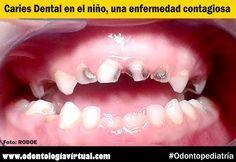 ODONTOPEDIATRÍA: Caries Dental en el niño, una enfermedad contagiosa   Ovi Dental