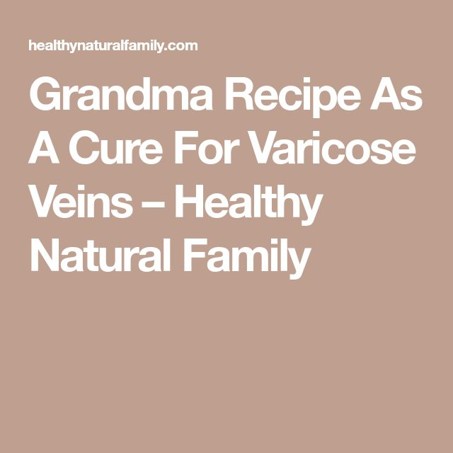 how to help varicose veins in pregnancy