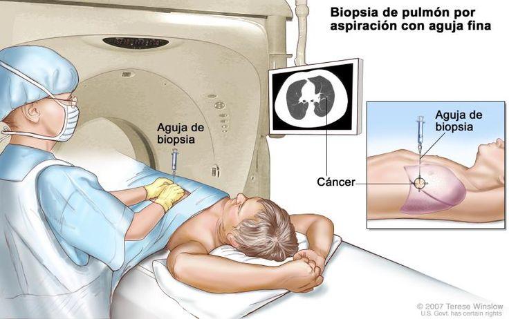 Biopsia de pulmón; el dibujo muestra a un paciente tendido sobre una camilla que se desliza a través de una máquina de tomografía computarizada (TC), y una imagen de una radiografía de un corte transversal del pulmón en un monitor arriba del paciente. El dibujo también muestra a un médico usando la imagen radiográfica para ayudarlo a colocar la aguja de biopsia a través de la pared torácica, hasta el área del tejido anormal del pulmón. El dibujo del recuadro muestra una vista lateral de la…