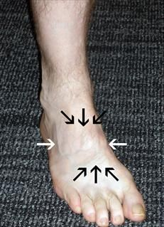 Pain Location of Foot