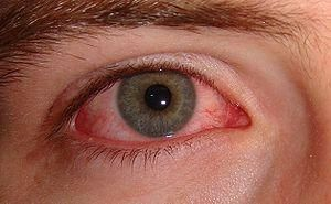 """Boric acid as a home remedy for eye infection. Purchase boric acid powder at your local pharmacy. Ask the pharmacist for """"medicinal"""" boric acid powder. (There is another type, which is used as a bug-killer.) This is very important!! Or purchase ready mixed Advanced Eye Relief Eye Wash at your drugstore"""