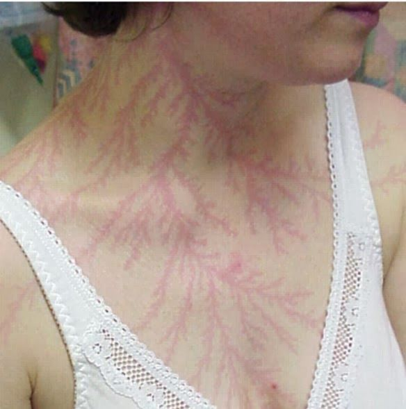 Lichtenberg figures: scars left by a lightning strike, Maybe this is what it looks like as the Fae magic starts to drain away once wings are taken