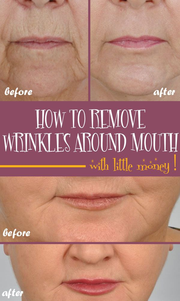 There is no need for you to buy expensive treatments in order to get rid of deep wrinkles around your mouth. Instead, you can try some natural remedies.