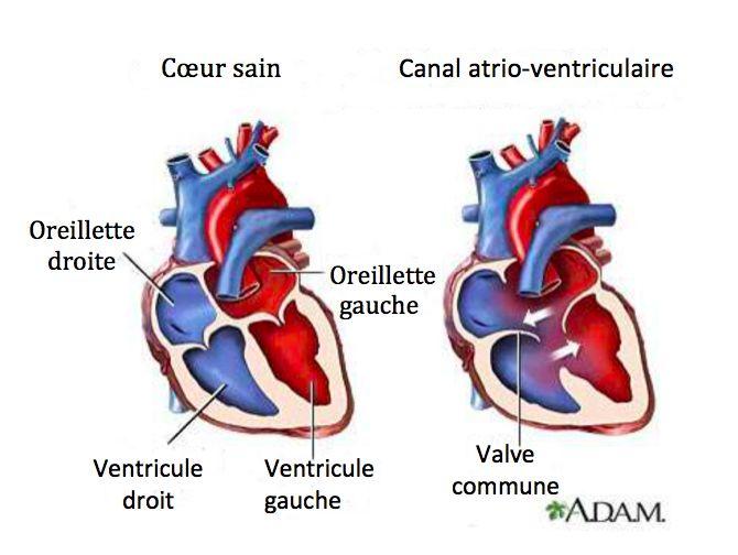 Découvrez les 7 symptômes d'un souffle au cœur - Améliore ta Santé