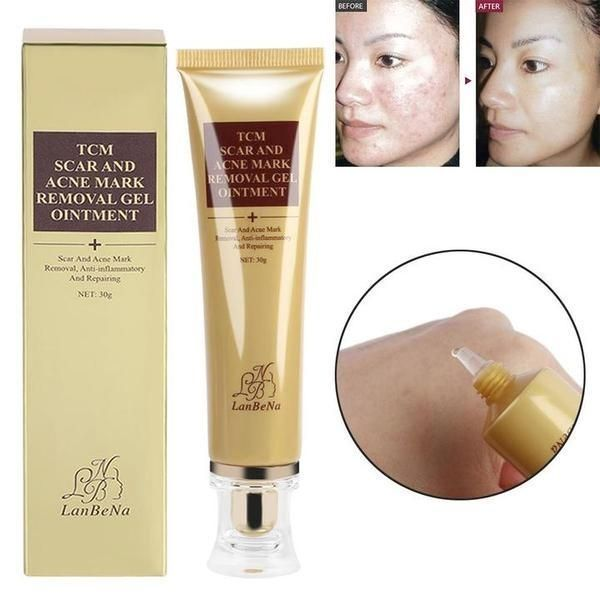 Best Acne Scar Removal Ointment In India Acne India Ointment
