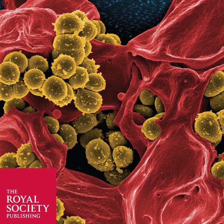 Staphylococcus aureus Antimicrobial resistance in humans,