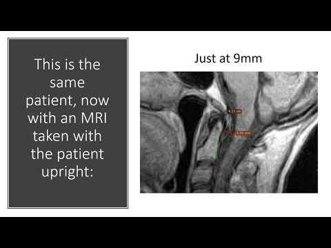 Pin on EDS type 3/ CCI/AAI, ON,Chronic Migraines,Fibro..