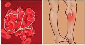 Trombózu možno liečiť, bohužiaľ ale veľa ľudí ignoruje príznaky a táto diagnóza je smrteľná pre 1 z 3 osôb. Trombóza vzniká v žilách alebo tepnách ako obranný mechanizmus s účelom poškodenú žilu li…