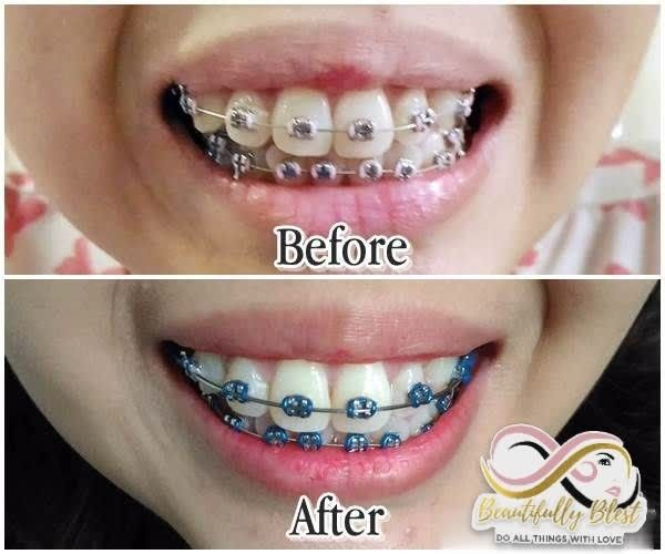 Pin On Whitening Toothpaste