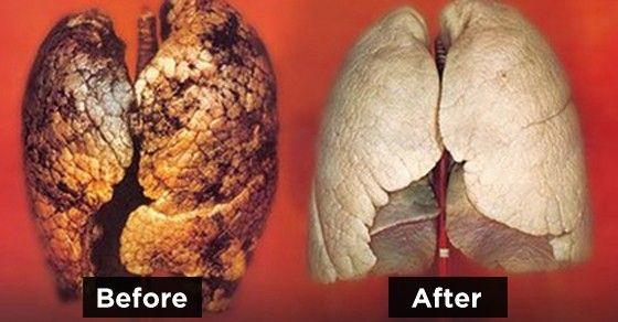 This image provided by Britain's Department of Health showing a healthy lung, left and a diseased lung, right, is one of the graphic pictures to be place on packs of cigarettes to discourage smokers. Words failed to stamp out smoking, so Britain will require graphic pictures of diseased organs on cigarette packs next year, the government announced Wednesday, Aug. 29, 2007. The images include a diseased lung, a chest cut open for heart surgery, and a large tumor on a man's neck. In all…