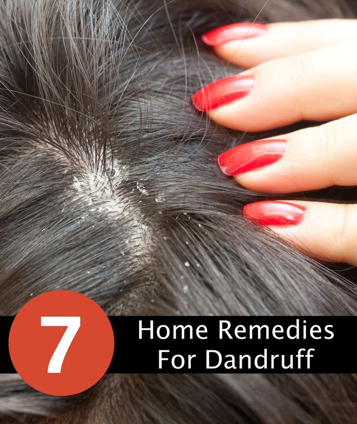 Best home remedies for removing dandruff as fast as possible.